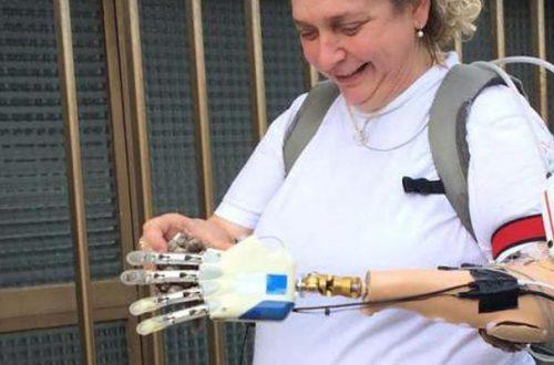 La mano bionica esiste